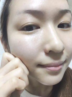 大人ニキビ洗顔料人気ランキング-6